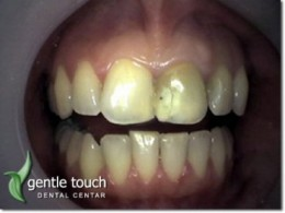 Bleaching of an avital (cured) tooth and replacement of filling after bleaching