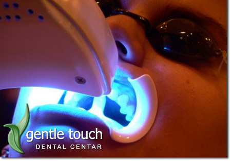 Technique of controlled home teeth whitening (home whitening)