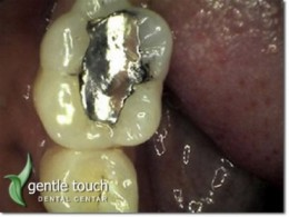 Replacement of existing amalgam fillings with new, modern composite systems